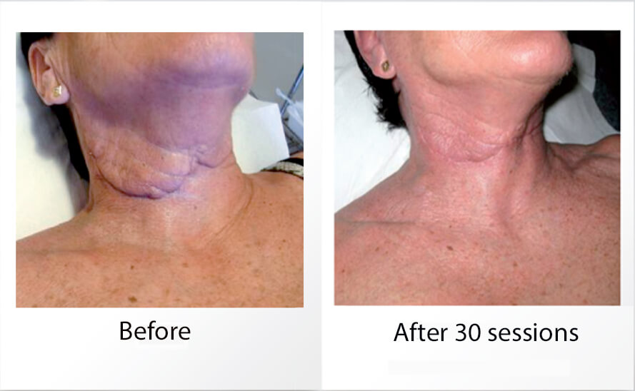 How To Remove Lumps Bumps After Liposuction Bio Beauty Inside Out
